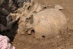 Trepanovaná lebka pohřbeného jedince